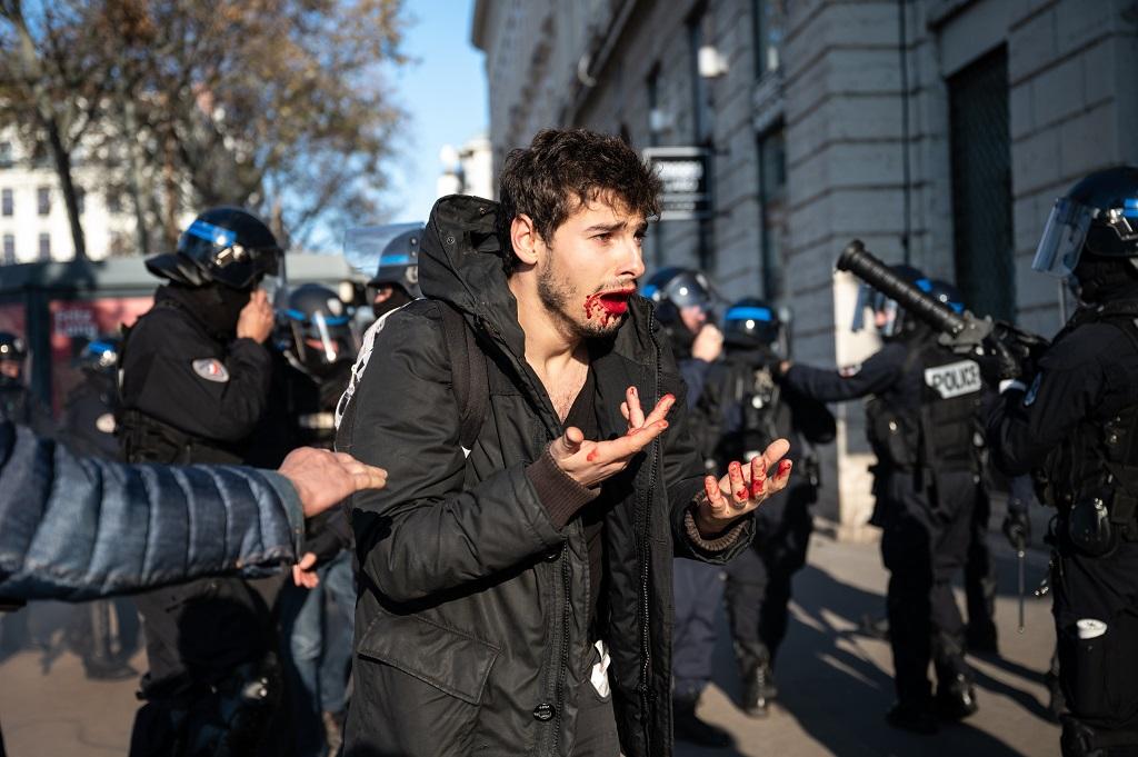 FRANCE – ARTHUR NACIRI POLICE ASSAULT DURING RETIREMENT REFORM DEMONSTRATION IN LYON