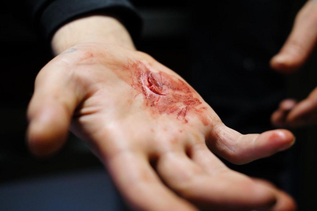 CP Toulouse_détenu agressé en cour de promenade (©T. Chantegret pour le CGLPL)